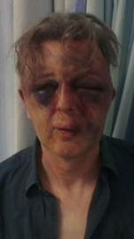 Facial injuries suffered by Paul Kohler